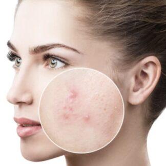 Acne Fighting